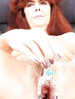 Зрелая тетка показала пизду гинекологу